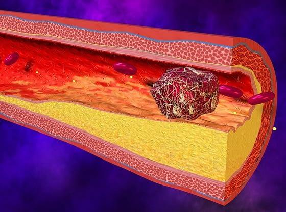 Kako-da-smanjite-holesterolski-plak-u-arterijama