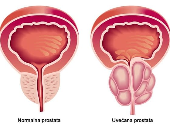 Prirodni lekovi za prostatu